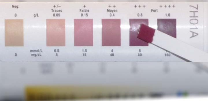 measuring ketosis with ketone strips